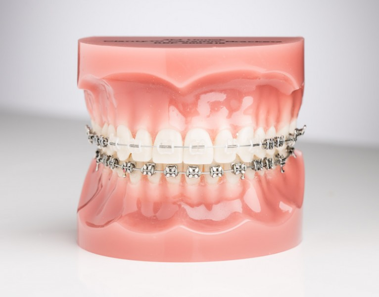 Kas lėtina ortodontinį gydymą?