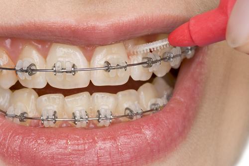 Dantų priežiūra su breketais
