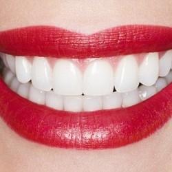 Balti dantys po ortodontinio gydymo